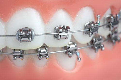 aparelho-ortodontico-fixo